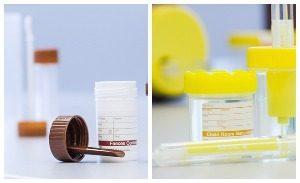 Съдове за съхранение и анализ на биологичен материал
